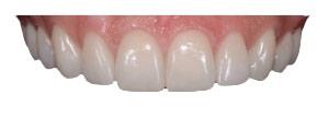 Zähne-Zahnarzt
