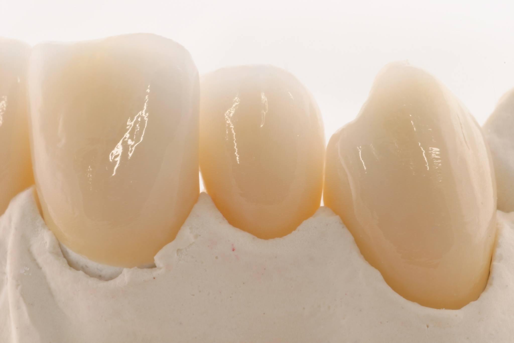 Private Krankenkassen Zahnersatz Gutachten