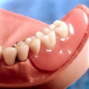 Geschiebe Zahnersatz