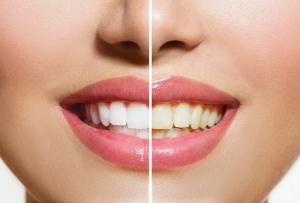 Top-weiße Zähne durch den richtigen Zahnarzt (Bild: Vorher nachher)