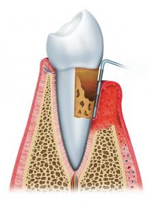 Parodontitis (Zahnfleischentzündung)