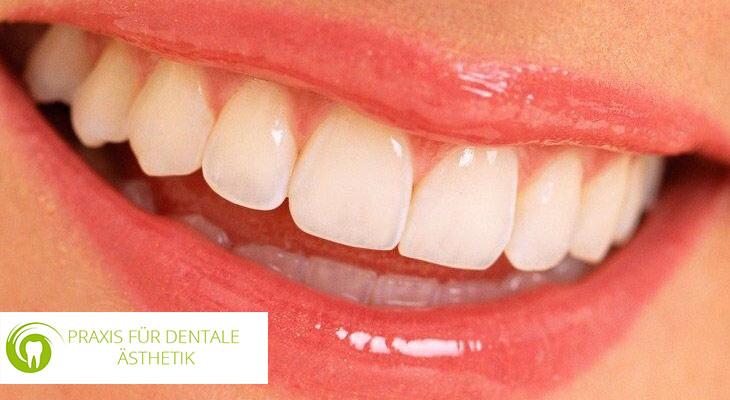 Schöne Zähne in Essen Rüttenscheid - Cosmetic Dental