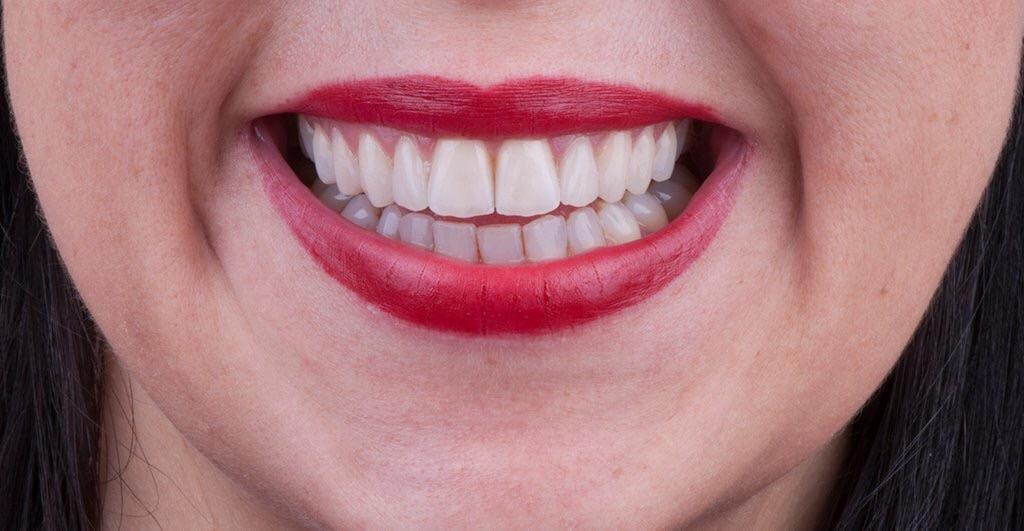 Systematische Parodontalbehandlung