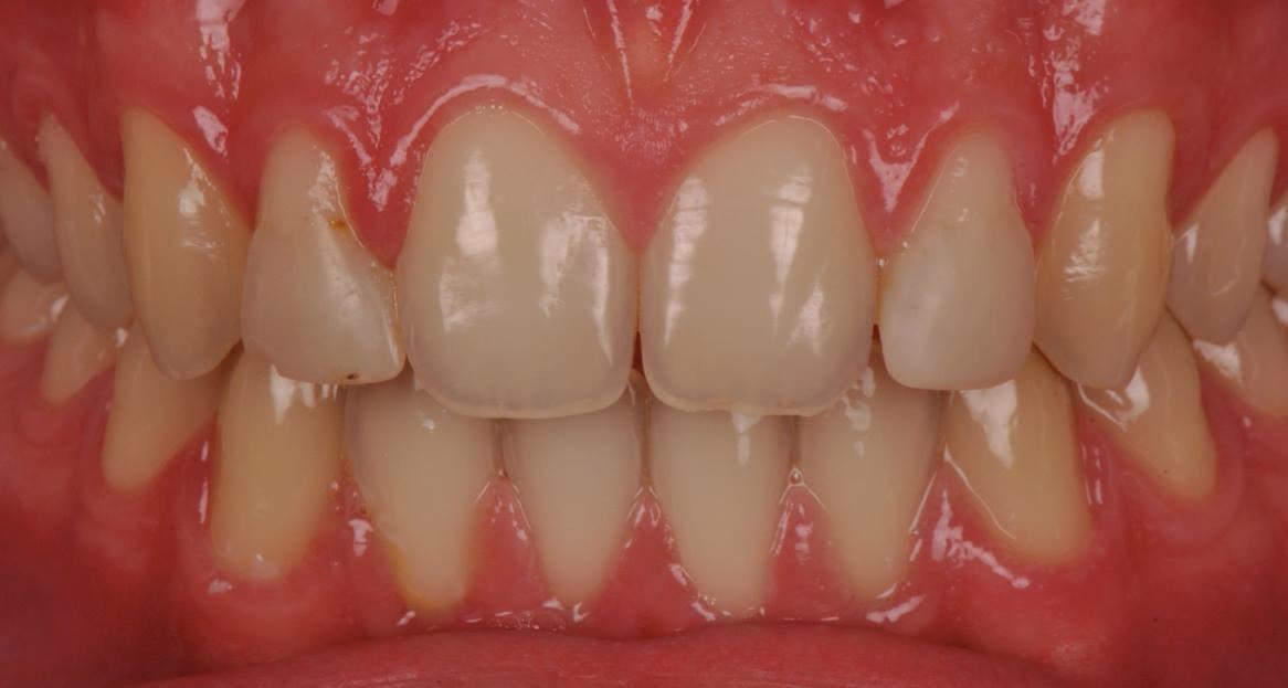 Zahnfleisch schmerzt