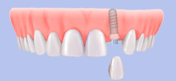 Keramik Implantate