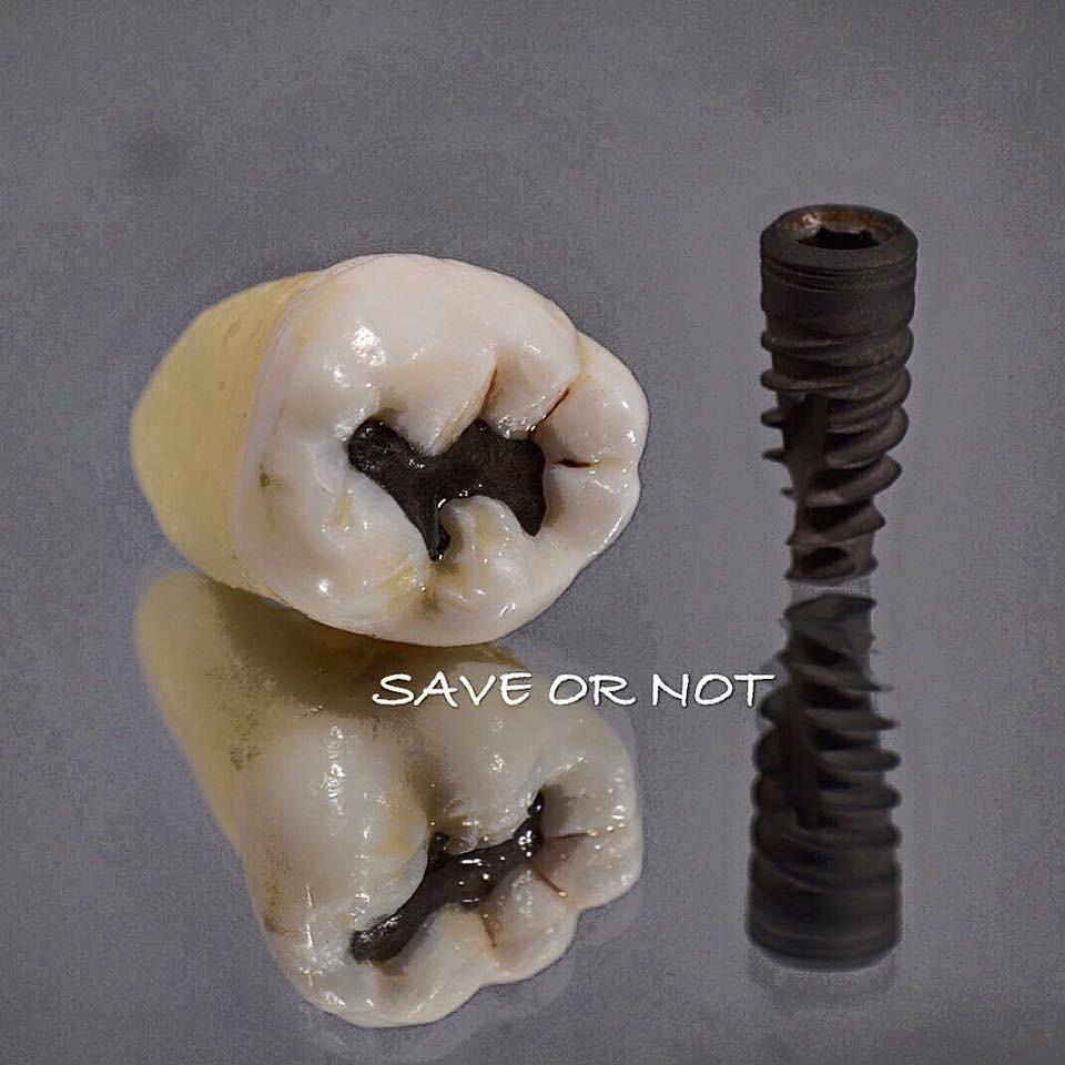 wurzelbehandlung oder implantat