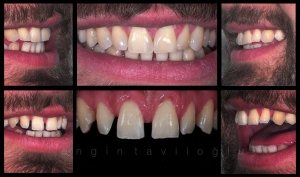 Lippenband Diastema