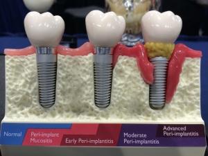implantatpflege