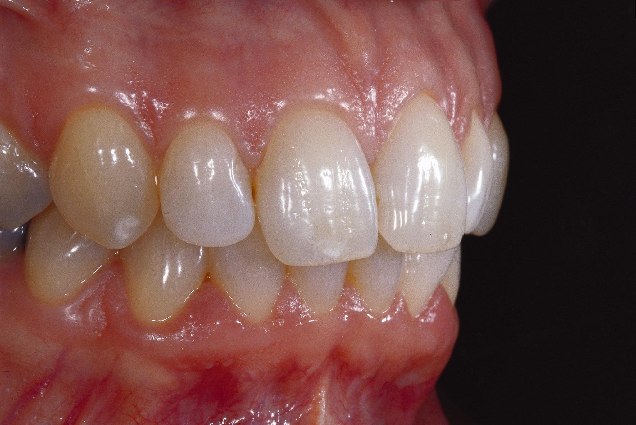 Stress und das Zahnfleisch