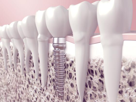 Implantatpflege für langfristigen Implantaterhalt
