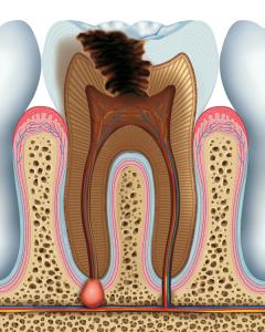 Entzündung der Zahnwurzel