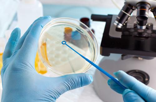 Schlaganfall durch Kariesbakterien