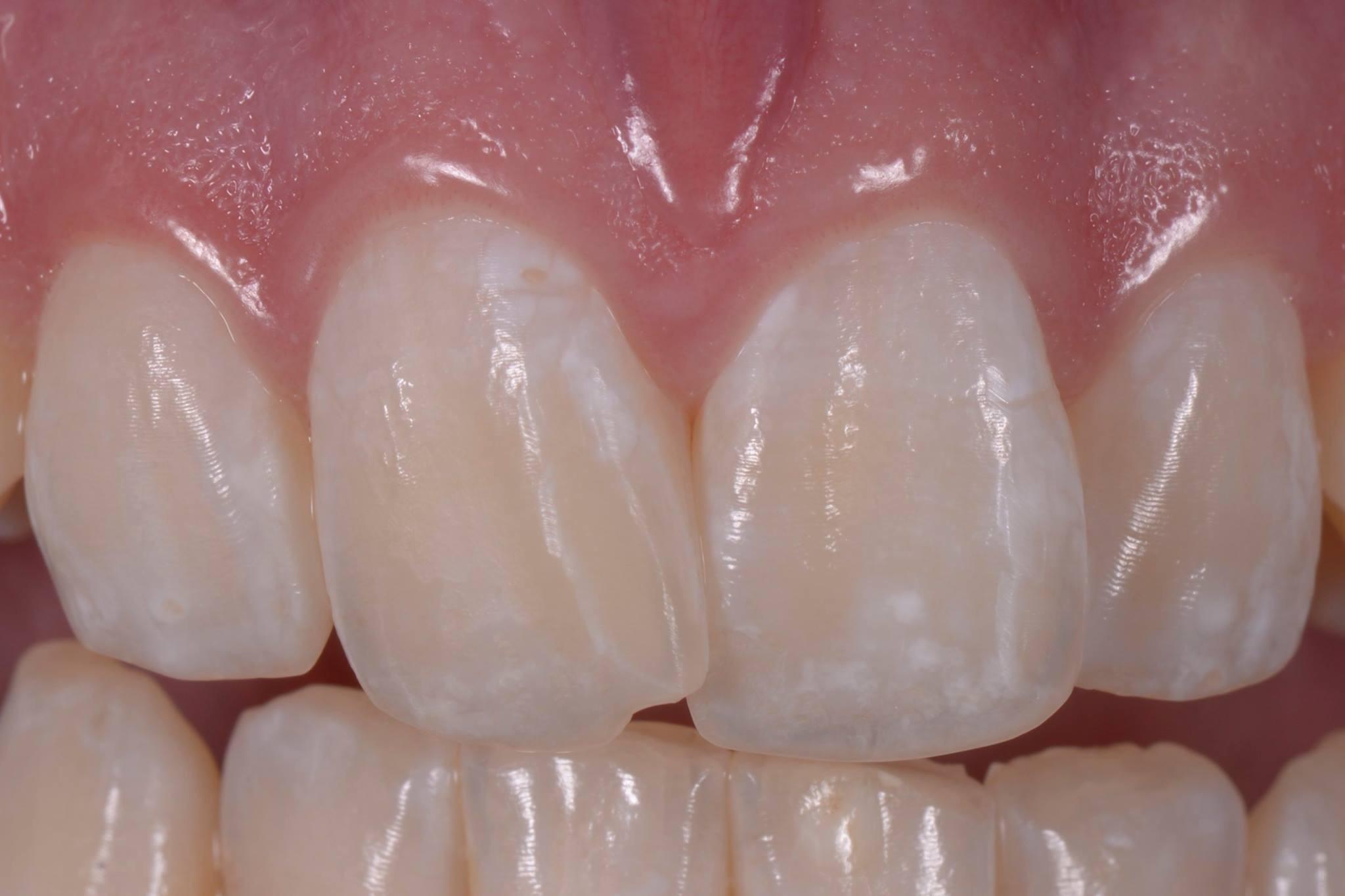 Zahnprobleme mit Folgen