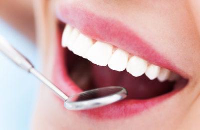 Riss im Zahn