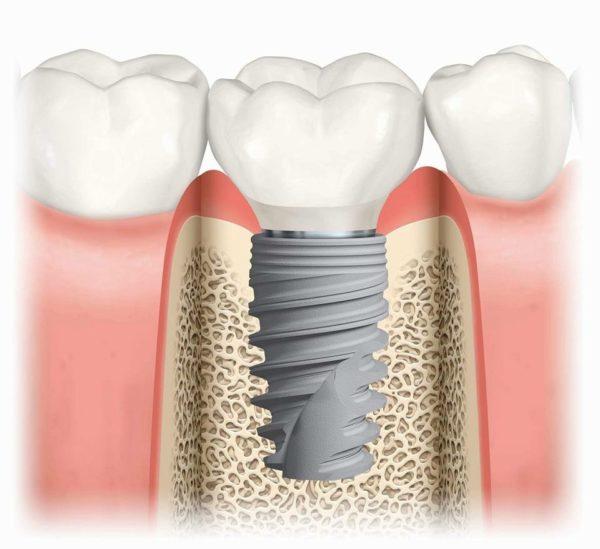 Neue Leitlinien in der Implantologie