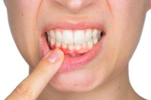 der Parodontale Screening Index (PSI) - Zahnarzt Essen Rüttenscheid