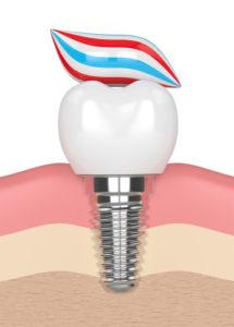 Zahnimplantate bei Diabetiker