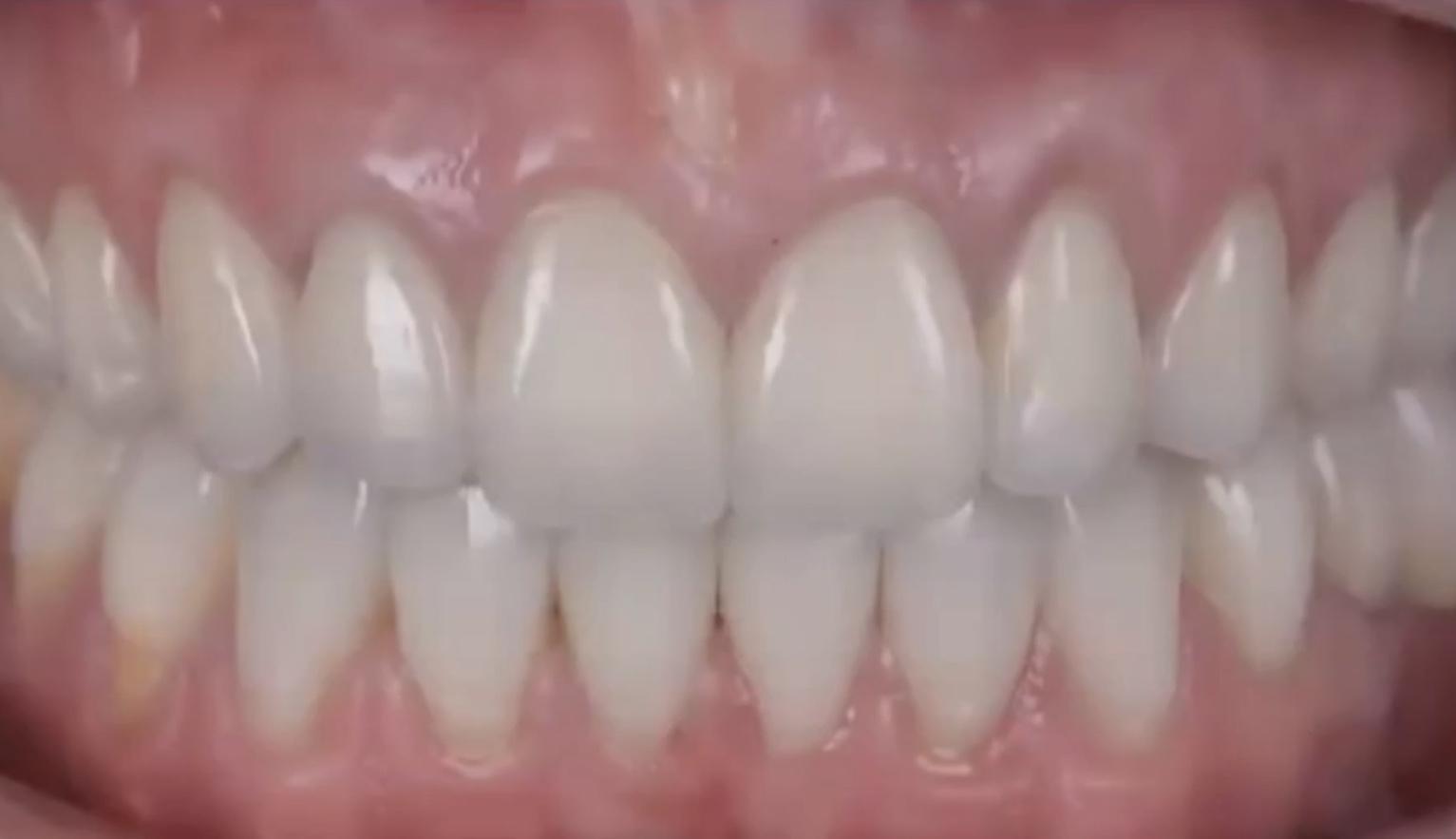 Nach Zahnfüllung Essen